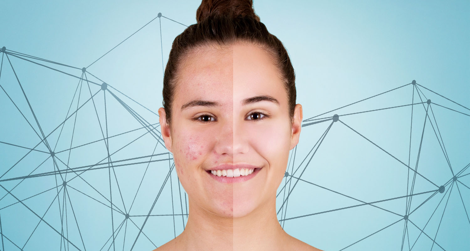 All About Acne, and Why Your Dermatologist Isn't Doing You Any Favors